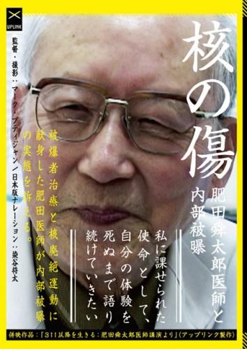 核の傷:肥田舜太郎医師と内部被曝